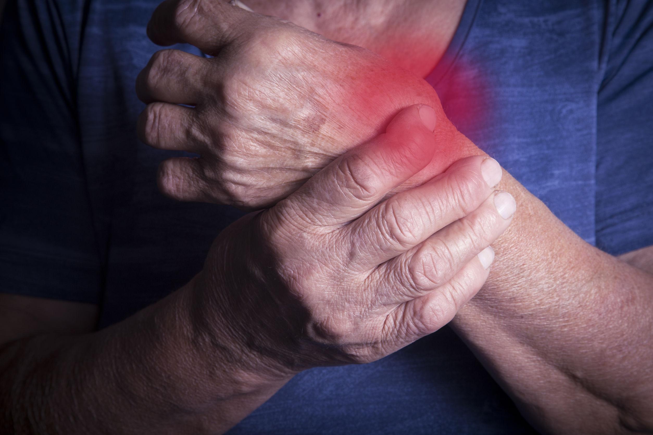 ¿Cómo ayudar a los enfermos de artritis?