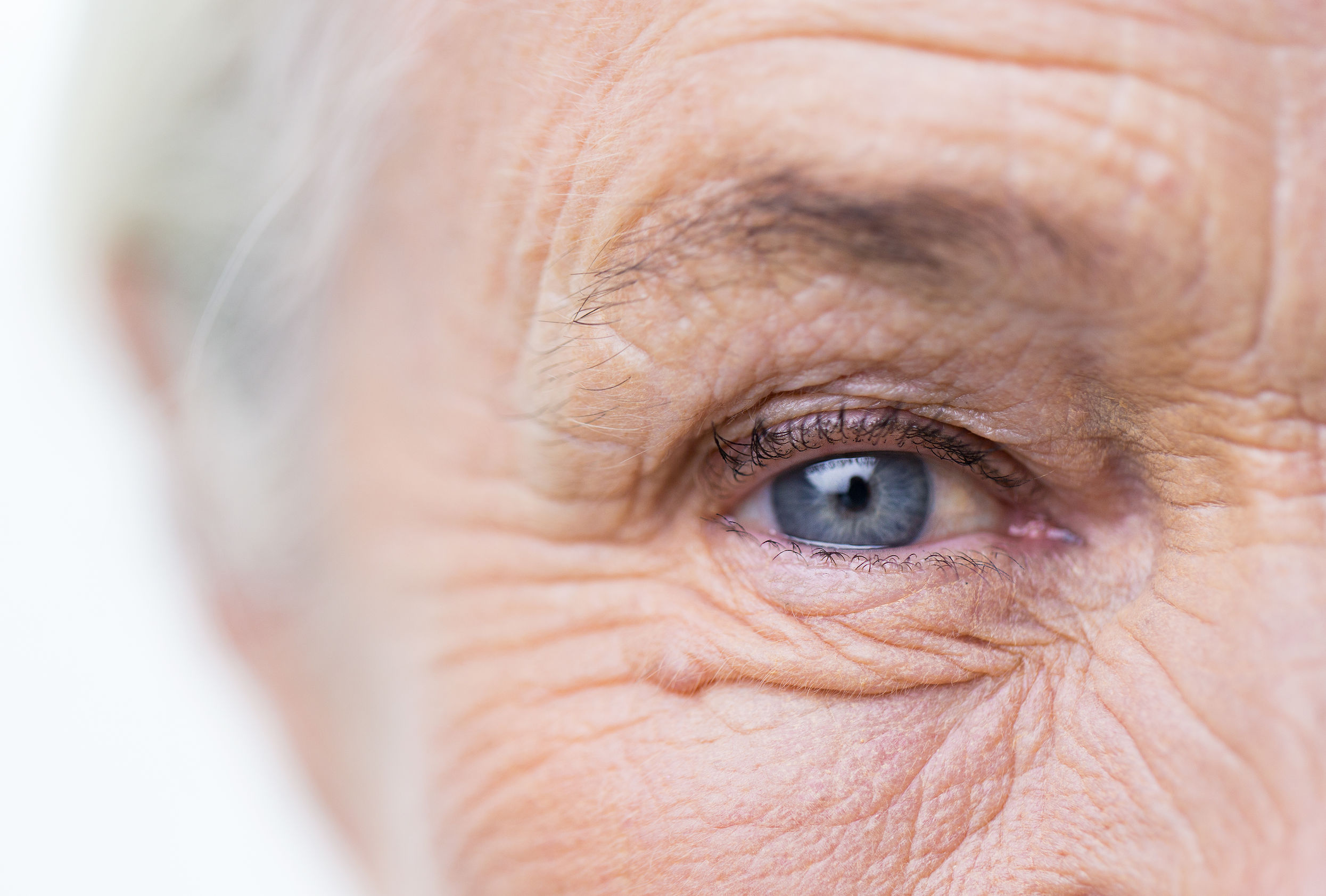 síntomas cataratas en ancianos