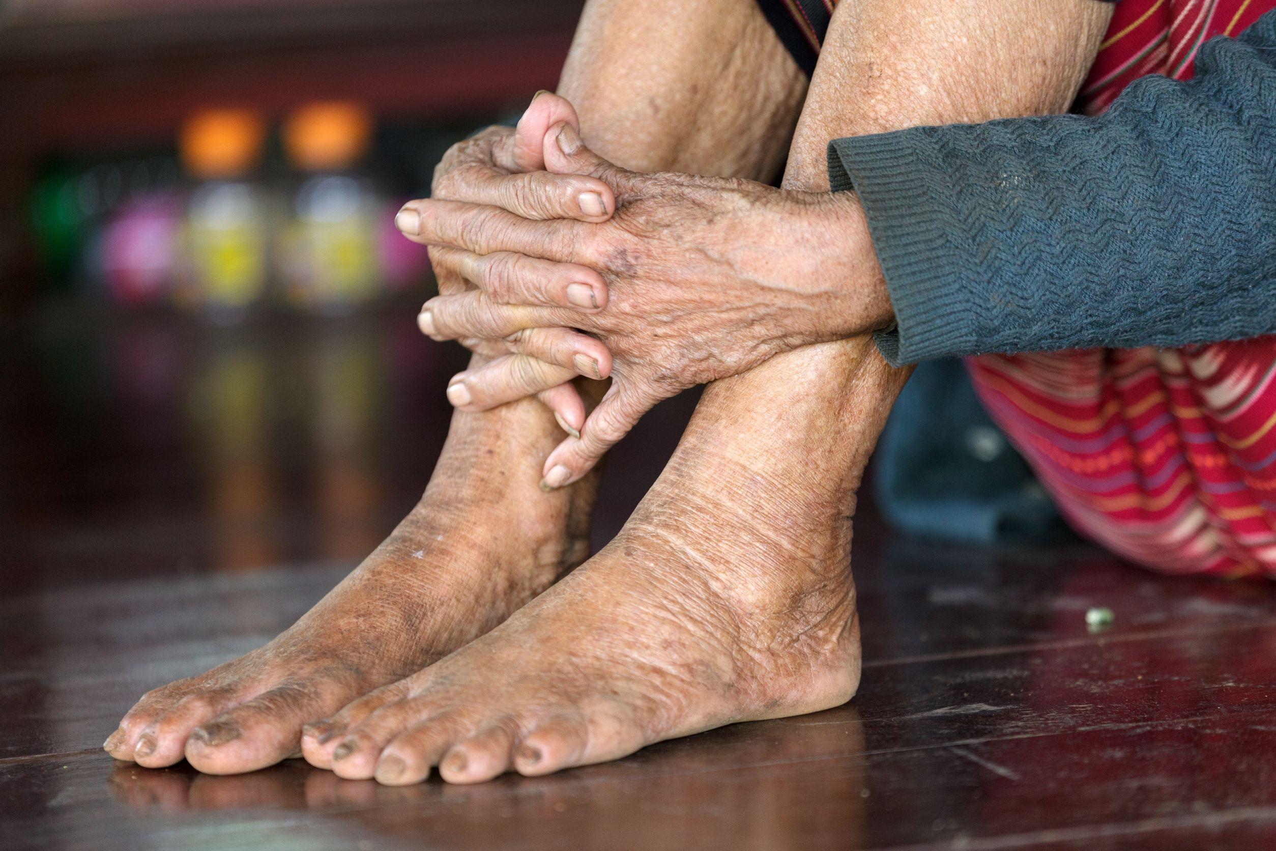 el cuidado de los pies en los mayores