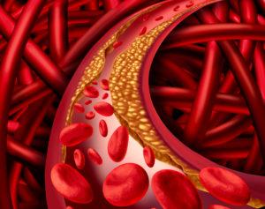 la importancia de vigilar el colesterol
